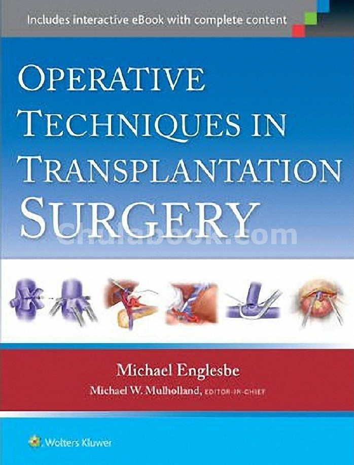 OPERATIVE TECHNIQUES IN TRANSPLANT SURGERY