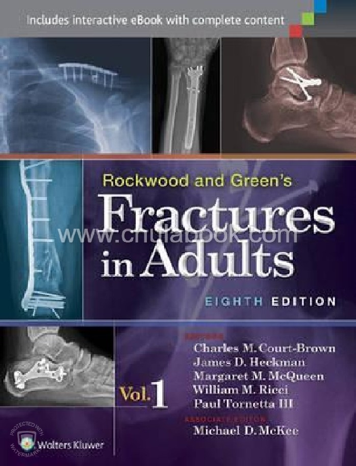 ROCKWOOD & GREEN'S FRACTURES IN ADULTS (VOLUME 1-2)