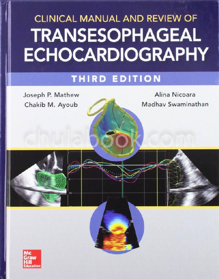 CLINICAL MANUAL AND REVIEW OF TRANSESOPHAGEAL ECHOCARDIOGRAPHY (HC)