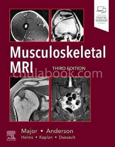 MUSCULOSKELETAL MRI (HC)