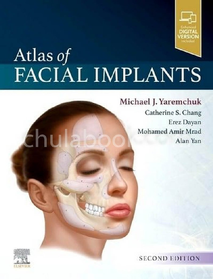 ATLAS OF FACIAL IMPLANTS (HC)